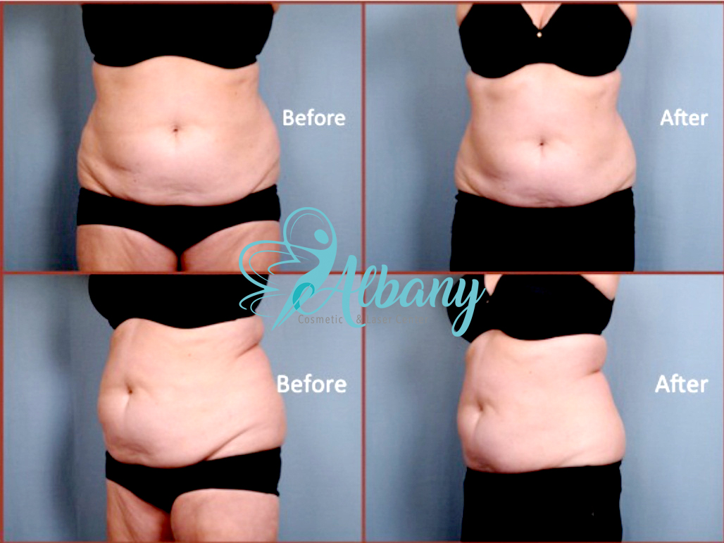 Coolsculpting and fat reduction, questions and answers part 4