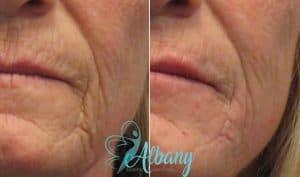 filler-wrinkles1-300x177