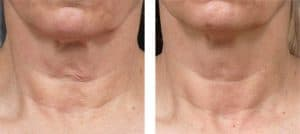 fraxel_skin_resurfacing-before_after-7-300x134