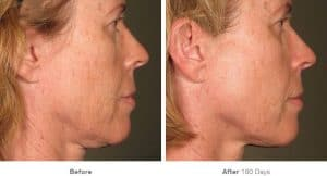 before_after_ultherapy_results_full-face15-300x162