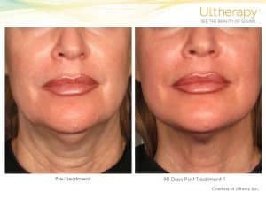 ultherapy-before-and-after-300x225