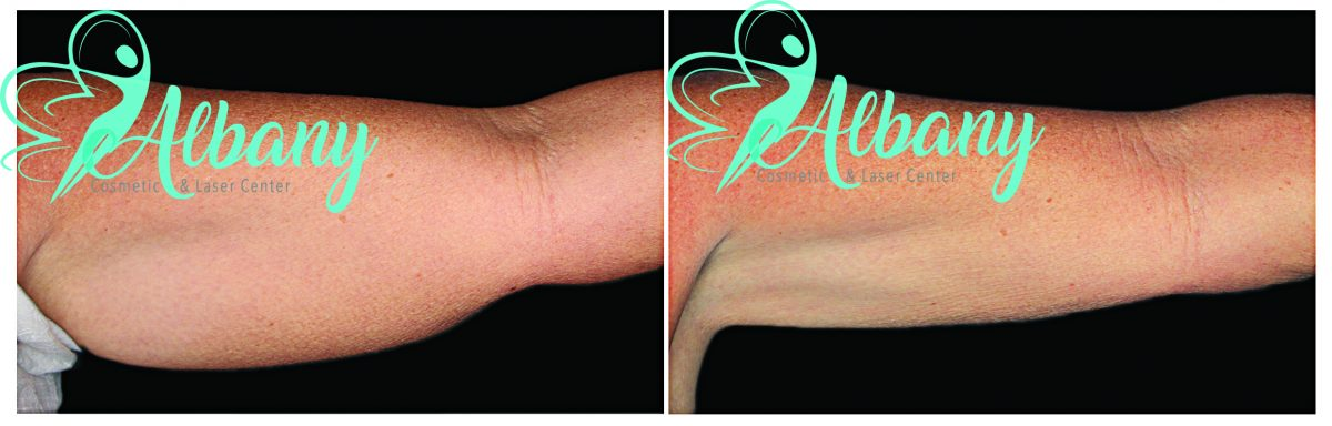 CoolSculpting for arm slimming