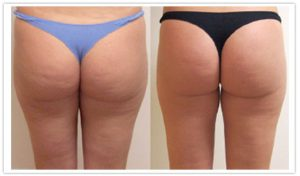 FAT REDUCTION