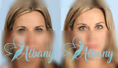 Botox injections for skin tightening