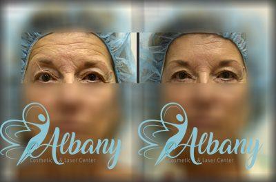 wrinkles removal