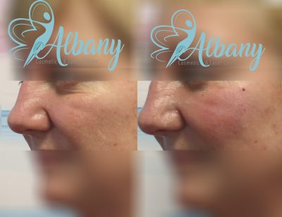 Midface augmentation