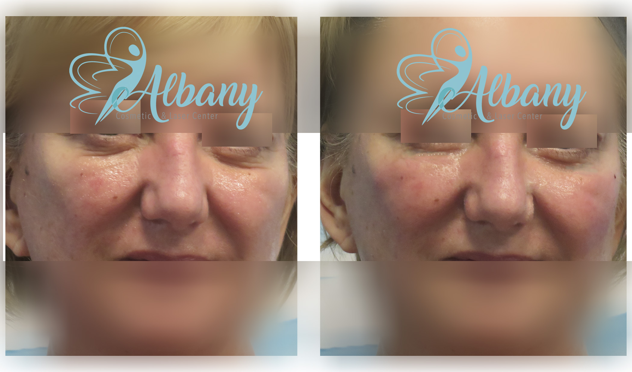 UNDER EYES CIRCLESUSING FILLERS - Albany Laser EDMONTON