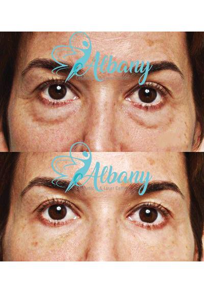 filler for under eye bags