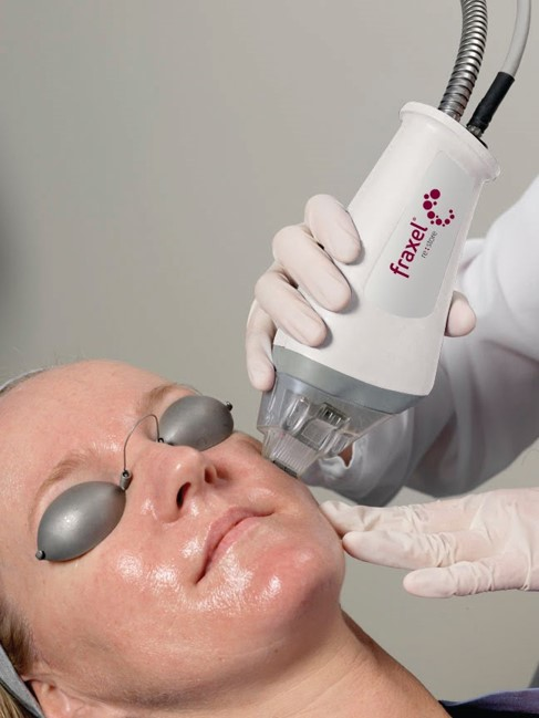 fillers treatment