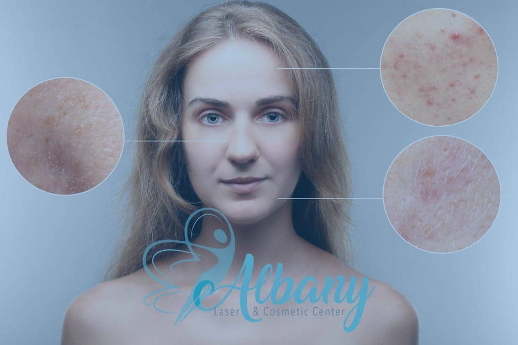 Acne Scan tratment with albany