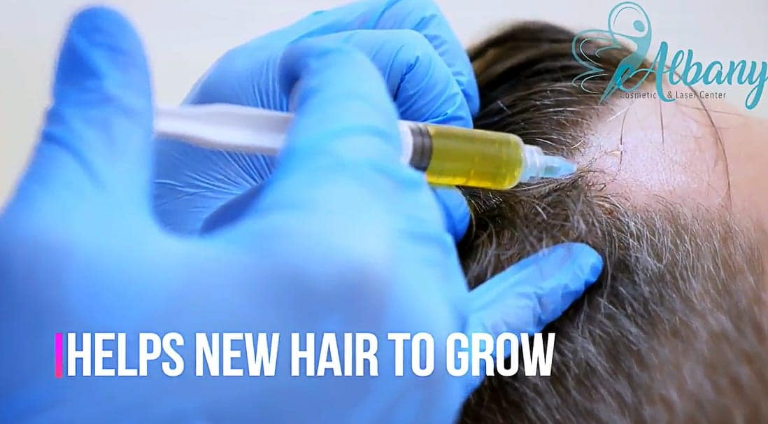 plasma injection for hair loss