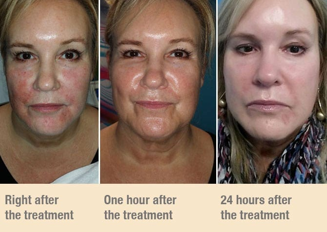 dermal fusion treatment