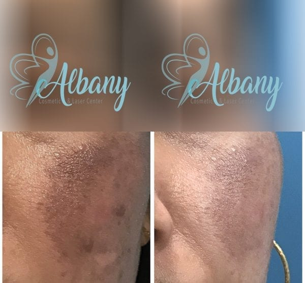 Hyper pigmentation removal in Edmonton