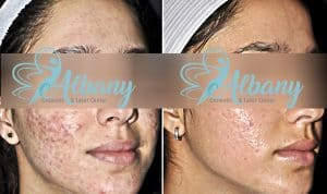 acne-before-and-after-nov