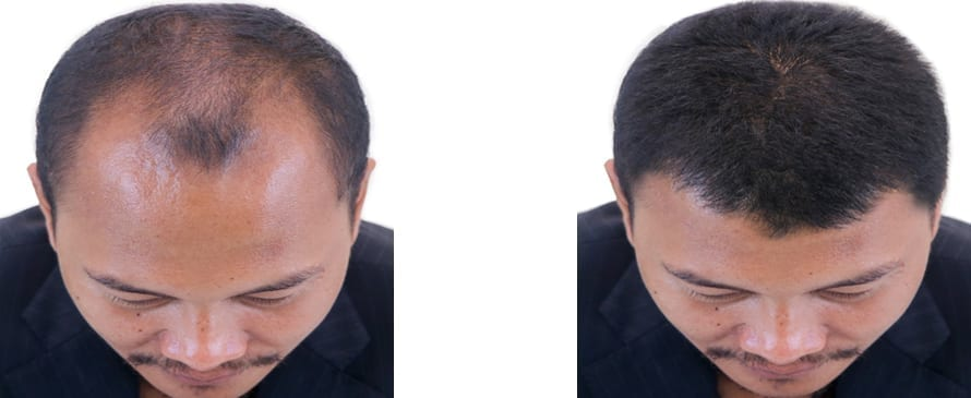 Plasma for hair loss