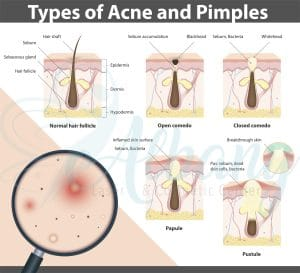 acne types infographic Edmonton