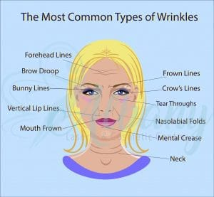 wrinkles types infographic
