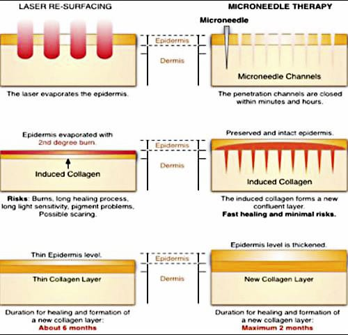 Fraxel and microneedle