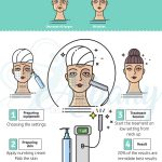 Ulthera facelift infographic