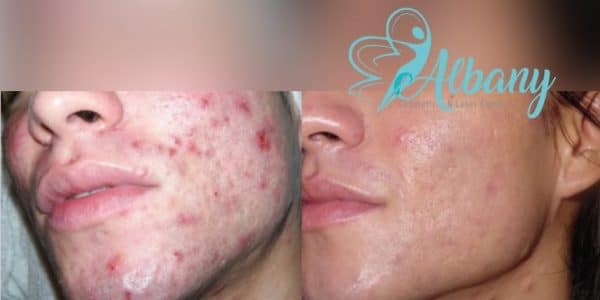 Acne treatment Edmonton