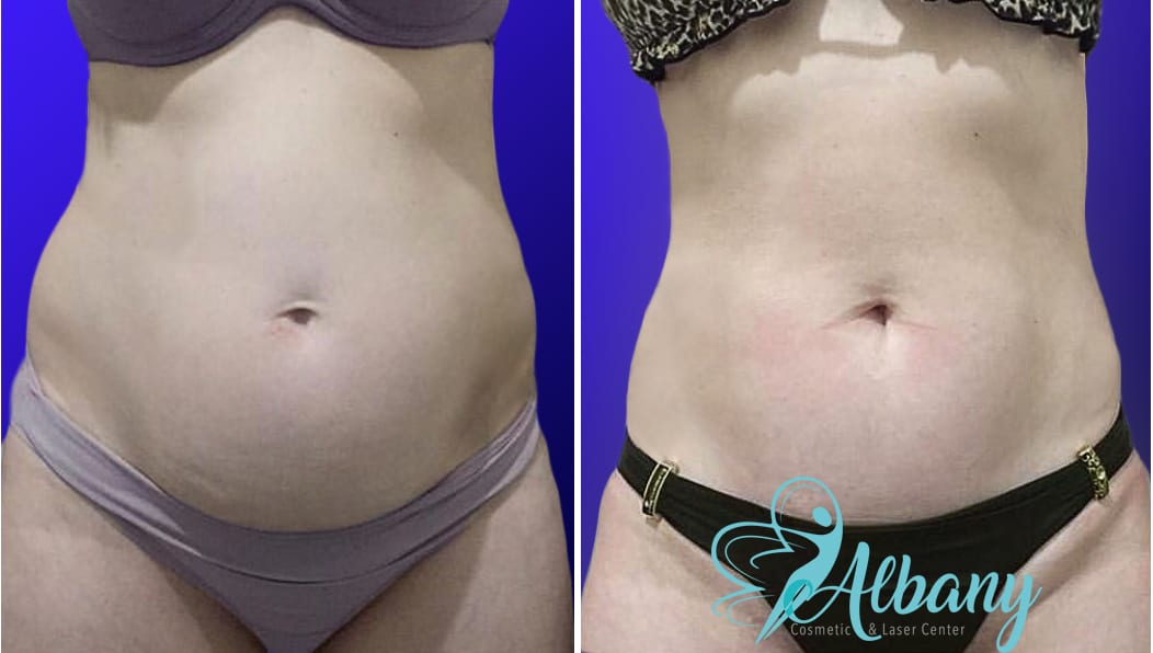 CoolSculpting edmonton before and after