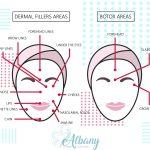 botox and filler infographics