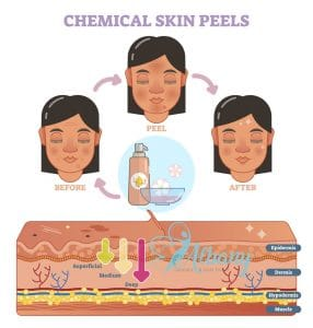 Chemical peel grades