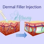 how does dermal fillers work