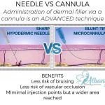 needle cannula infographic