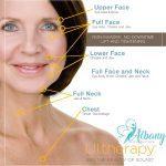 Ulthera treatment areas