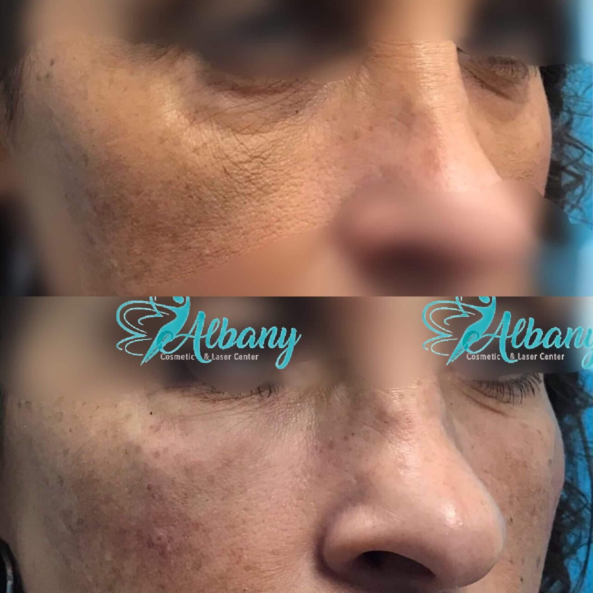 Before and after dermal filler injection