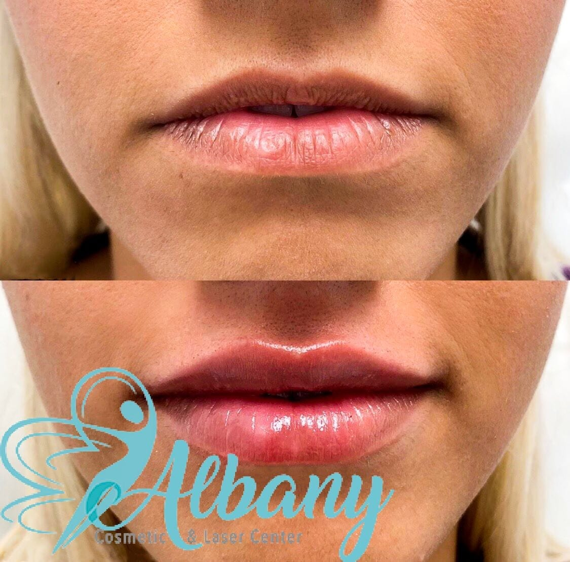 Before and after fillers Juvederm