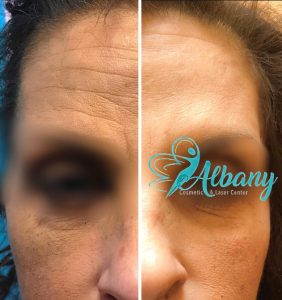 Before and after Botox injection in Edmonton