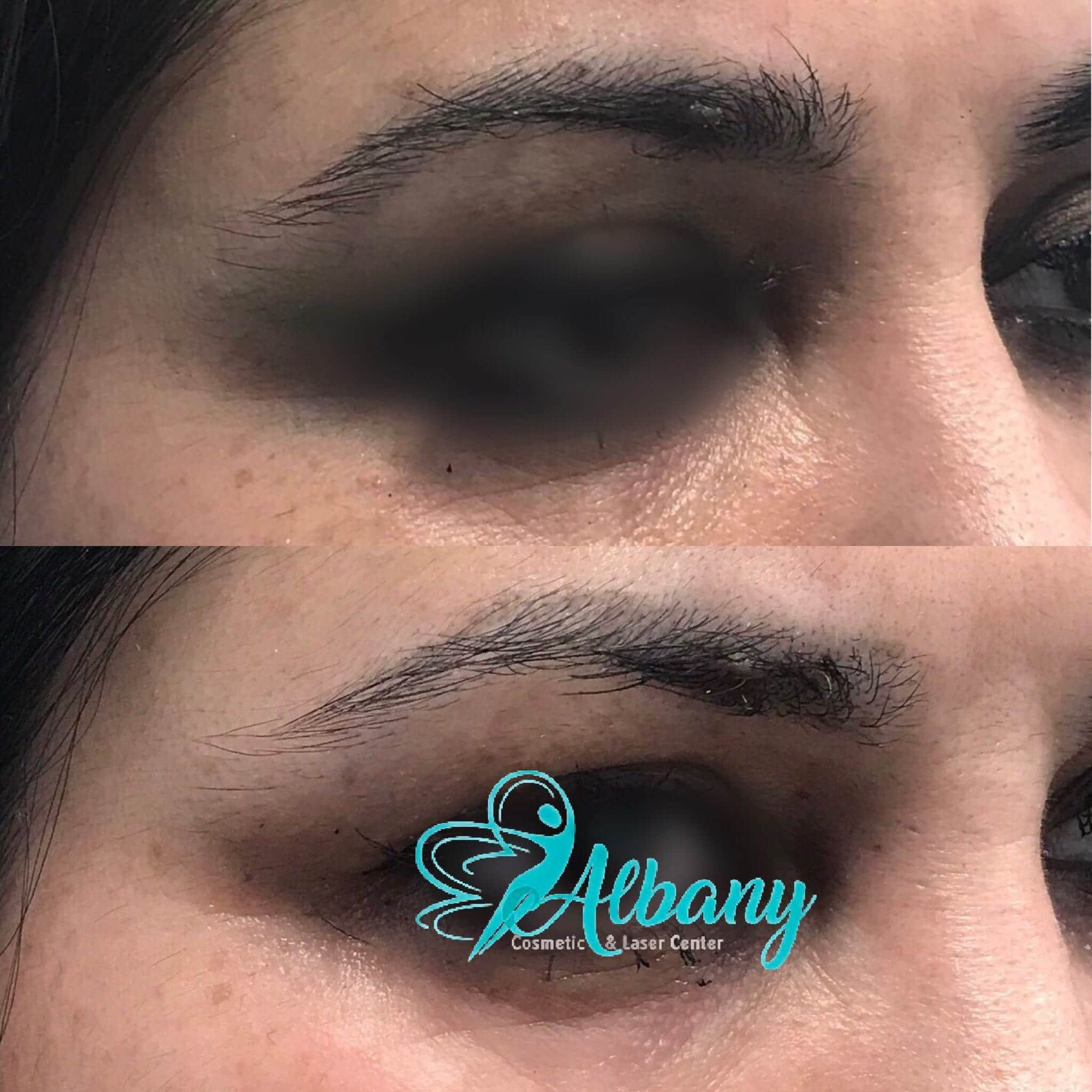 eye brow lift Edmonton