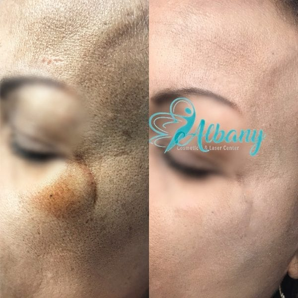 melasma treatment with Fraxel laser