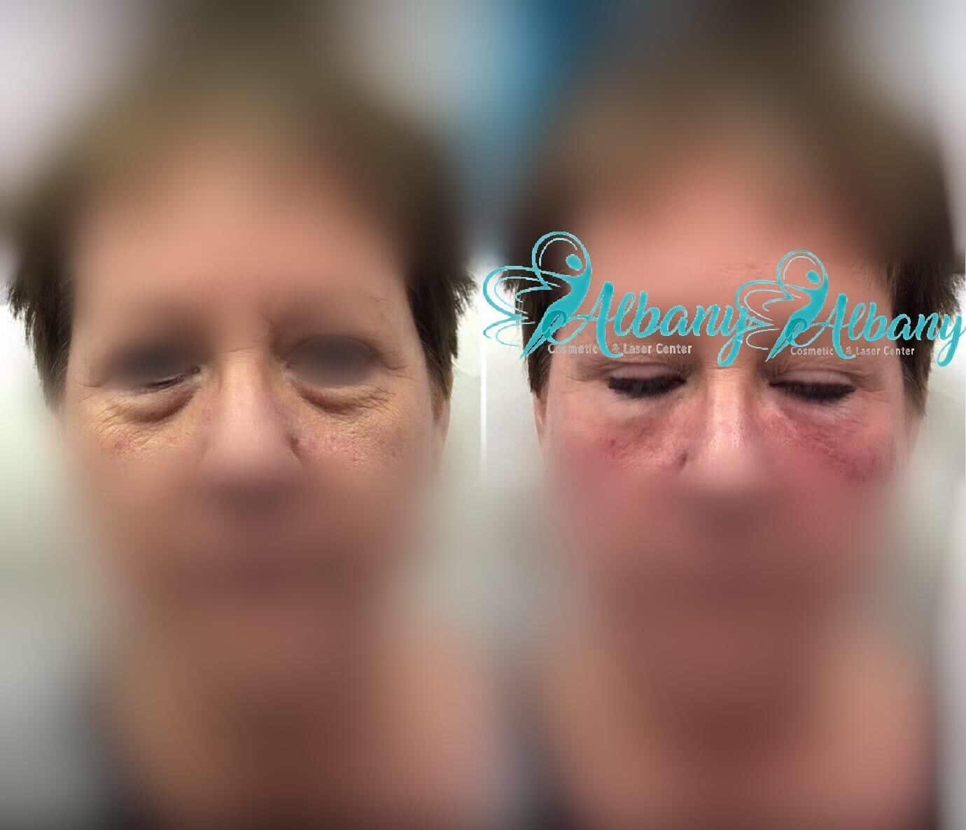 undereyes bags treatment with fillers