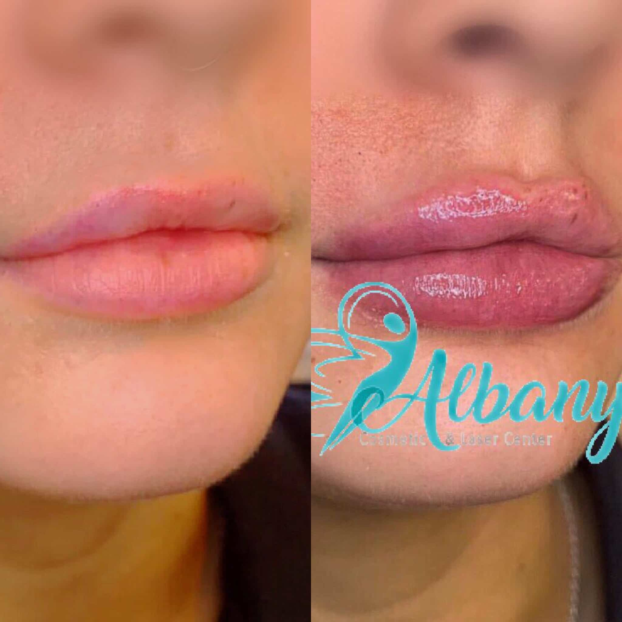 Before and after Juvederm lip fillers in Edmonton