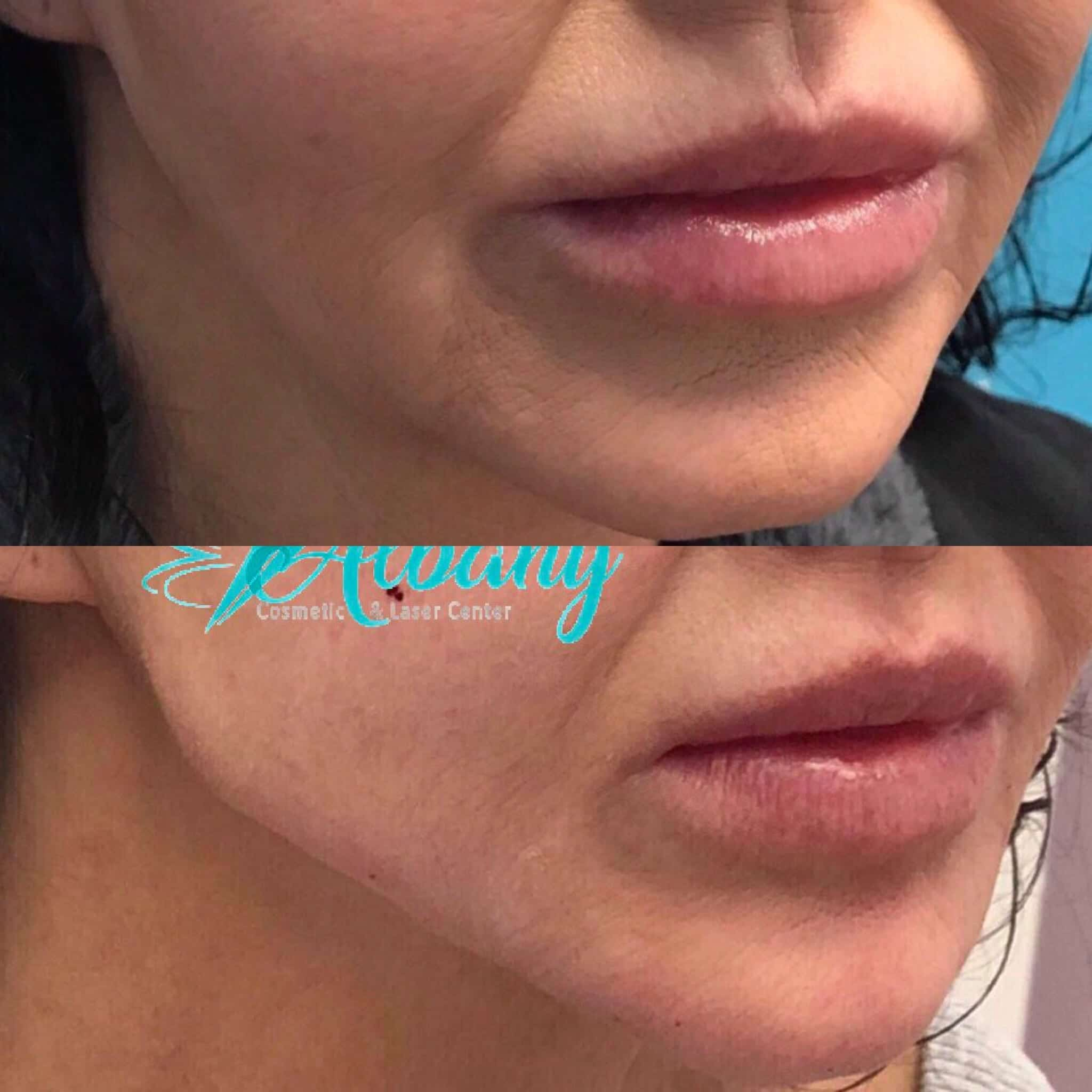 Jawline contouring with Restylane in Edmonton