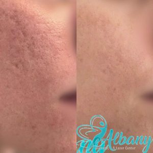 before and after acne scars treatment