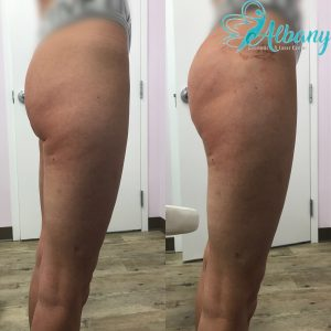 Butt lift with fillers in Edmonton
