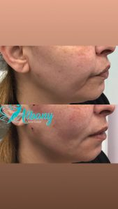 facelift with PDO threads