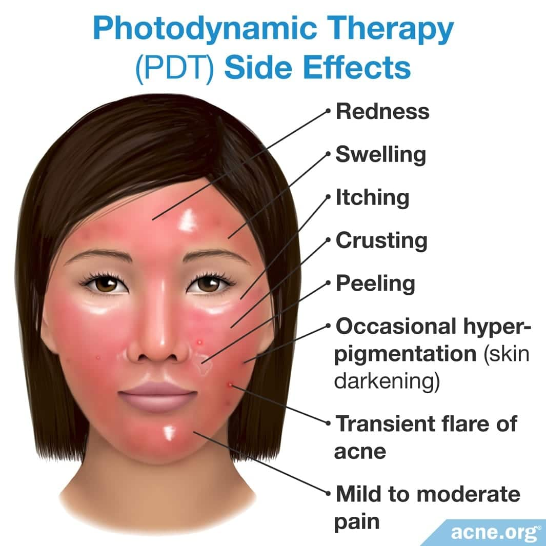 PHOTODYNAMIC THERAPY FOR ACNE