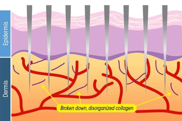 How micro needling works