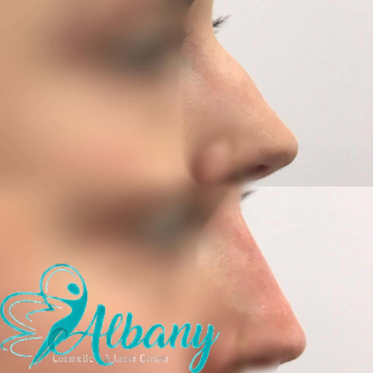 nose job Edmonton