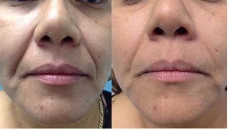 Fotona laser 4D before and after