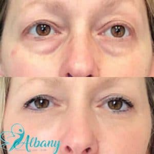 under eye fillers Edmonton