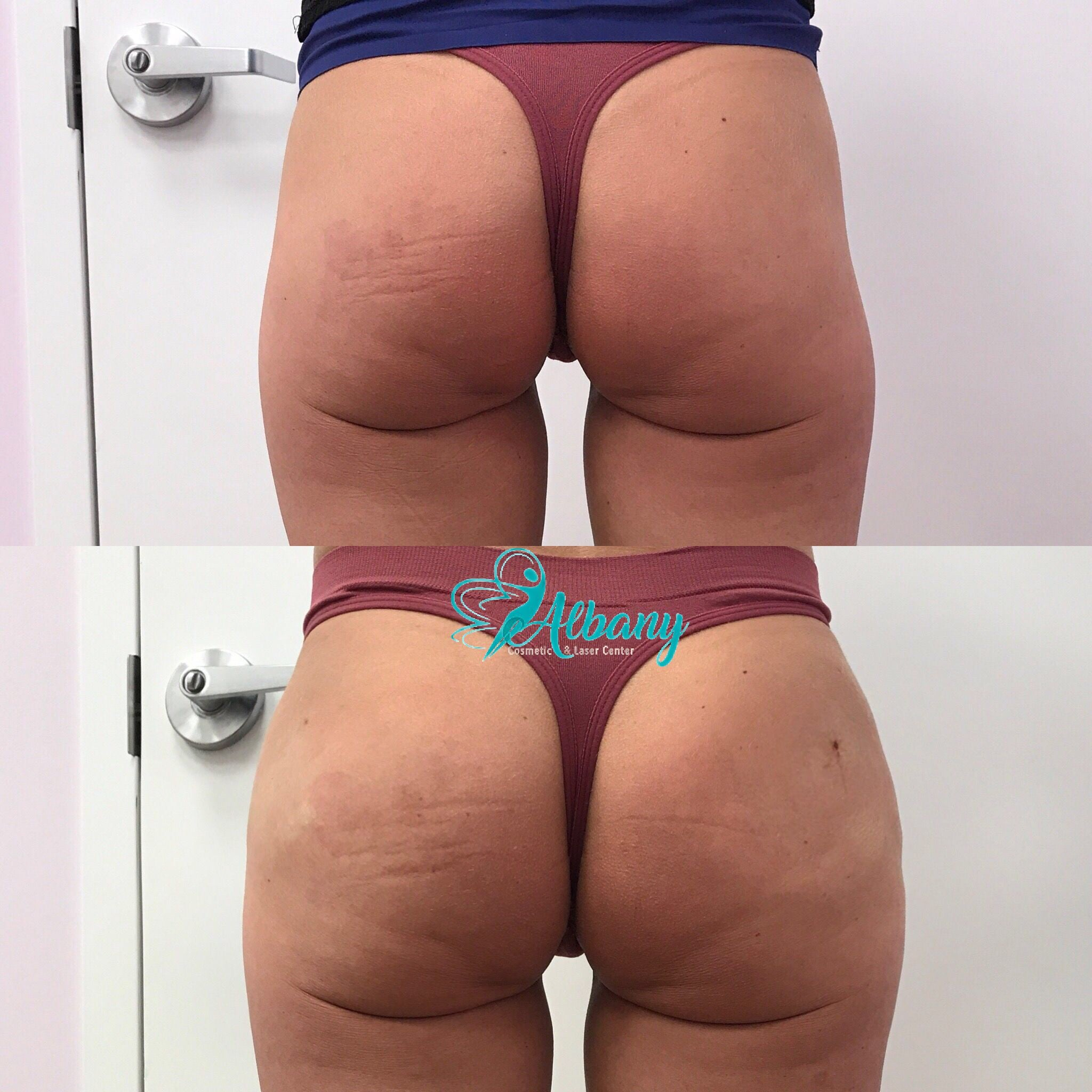 Butt lift wit Sculptra