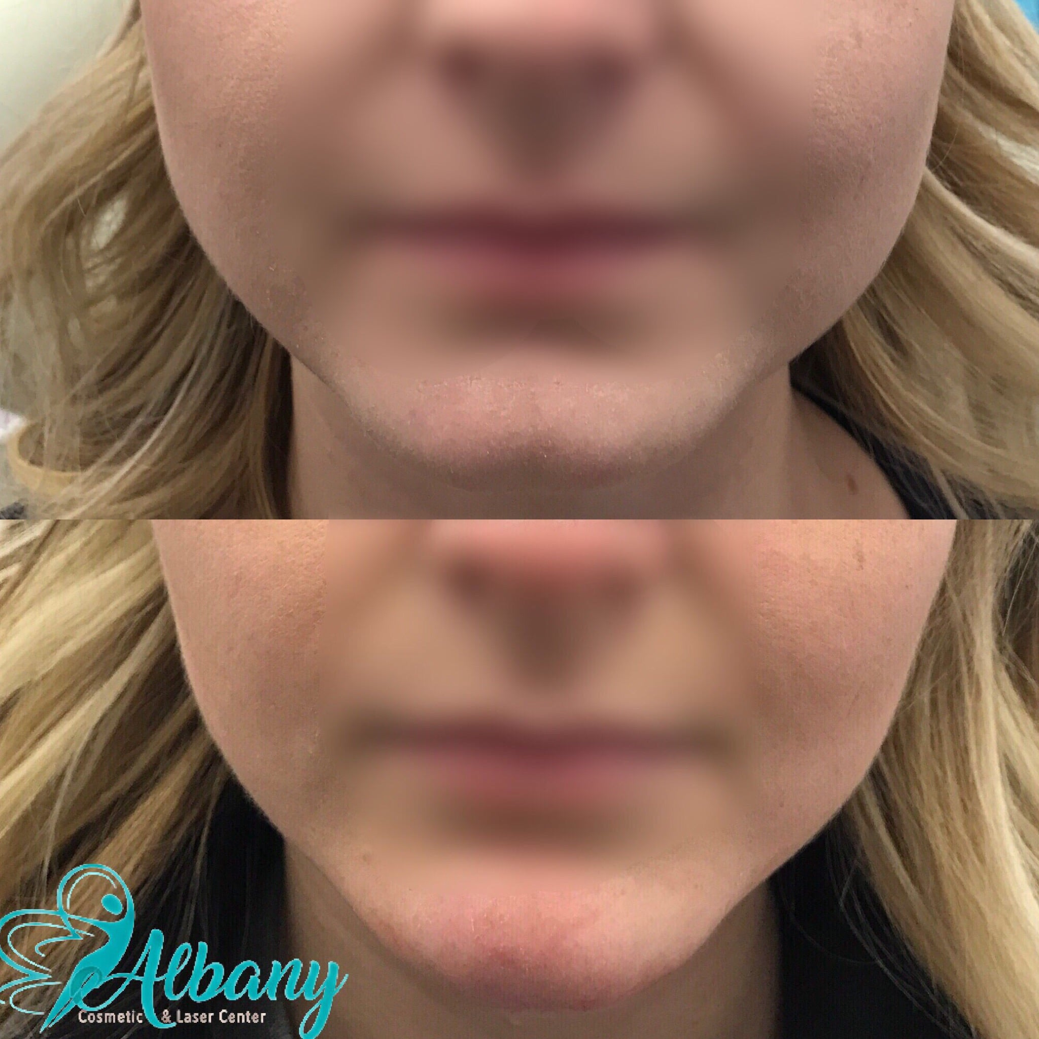 Face slimming with Botox