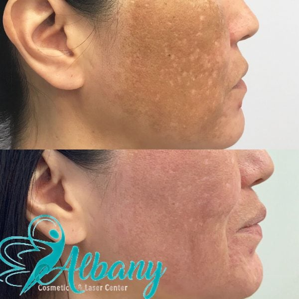 Pigmentation treatment with laser
