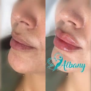 before and after lips injection